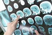 متخصصین مغز و اعصاب ایرانی پاریس | Neurologue